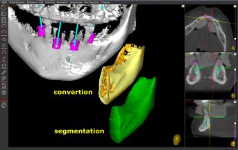 DICOM segmentation